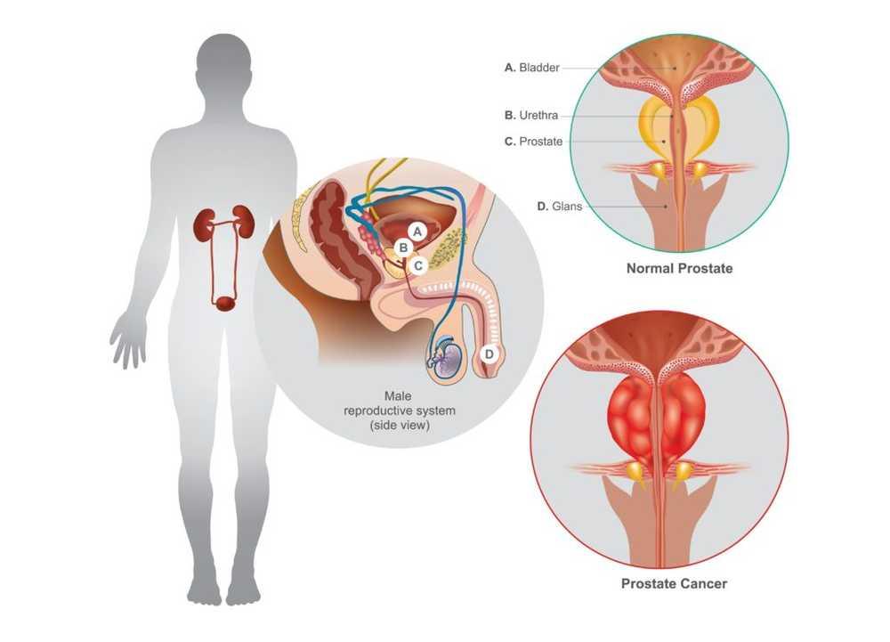 disfunzione erettile del tratto falciforme
