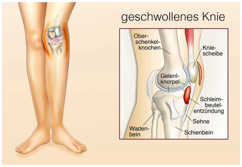 fluid în genunchi leac pentru durerea în articulațiile picioarelor donului
