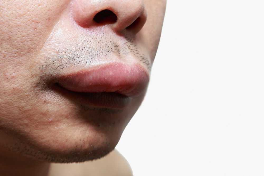 umflarea articulației pe tratamentul feței saltele pentru dureri articulare