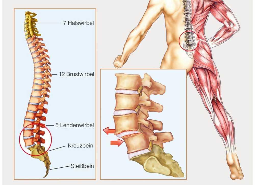 Osteocondroza coloanei lombare l5 s1