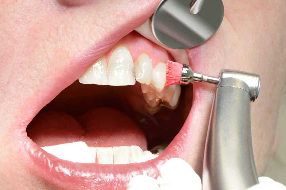 Dentist Which dental filling is the best? / Health News