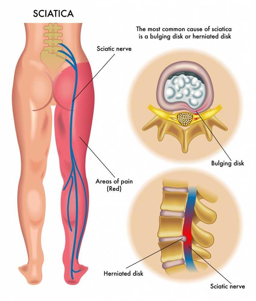 creme de dureri articulare și musculare