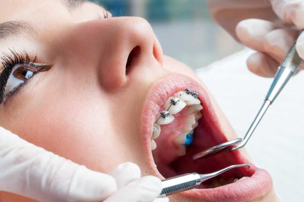 Dentist braces also useful for adults / Health News