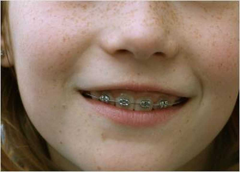 Braces forced parents to co-payments / Health News