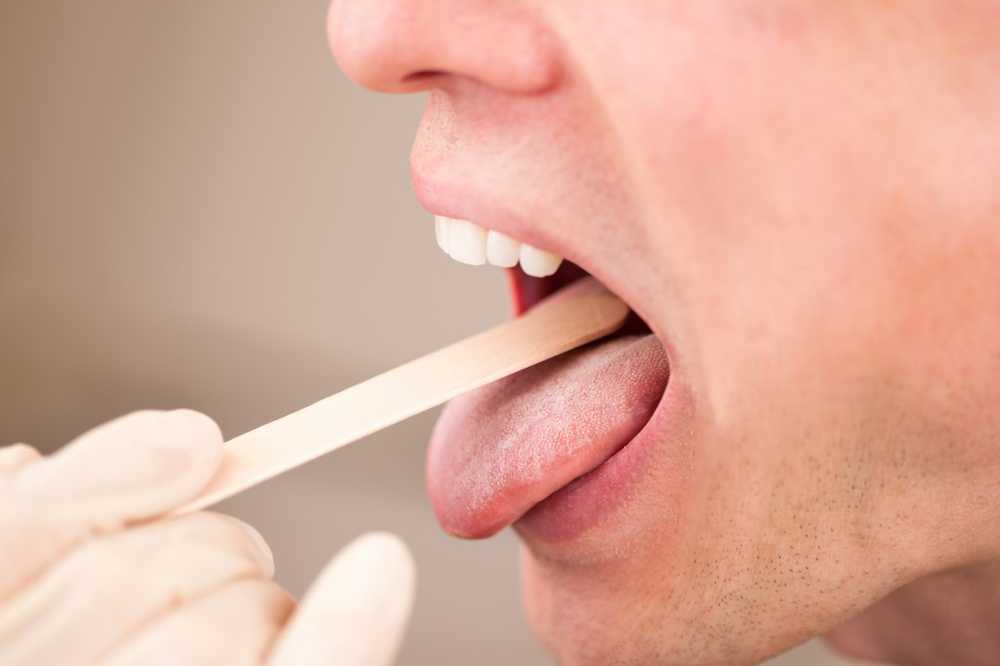 Tongue fungus causes and treatment / Diseases